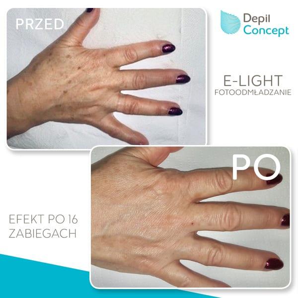fotoodmładzanie dłoni e-light regeneracja dłoni