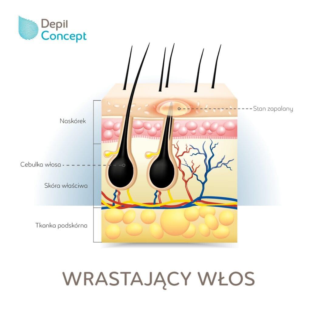wrastające włoski depilconcept depilacja