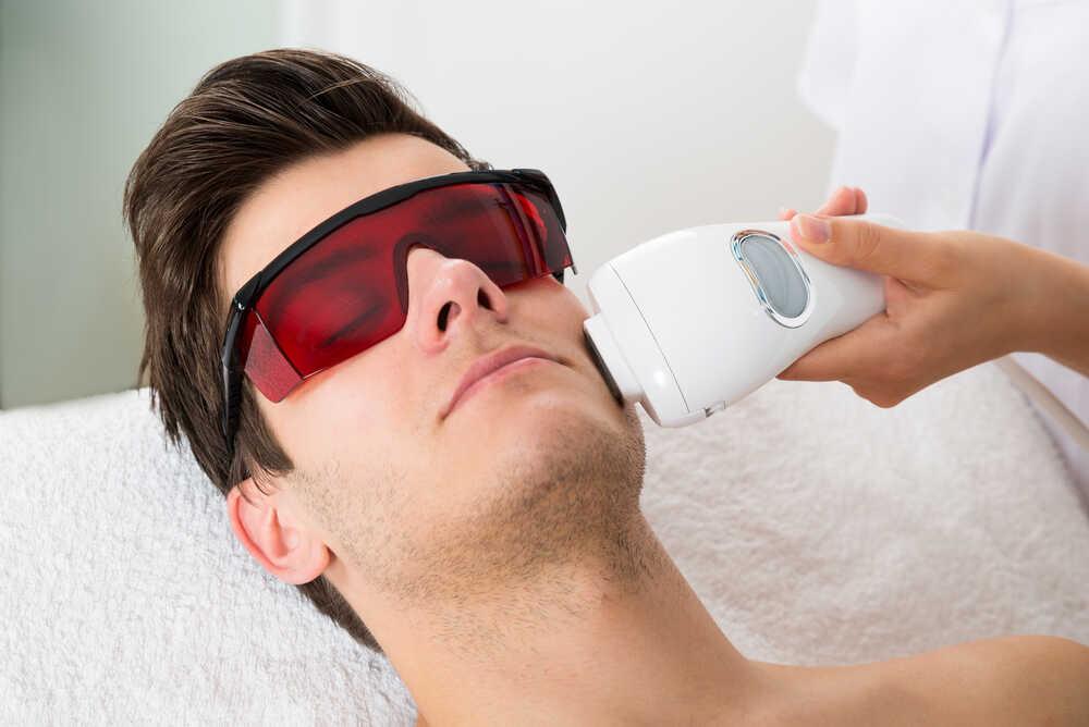 męska depilacja światłem po twarzy mężczyzny
