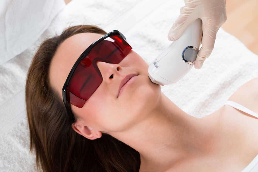kobieca depilacja twarzy